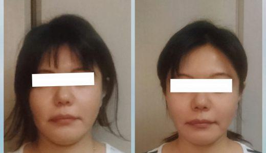 顔の悩みは構造体である身体を使えるようになることで消えていく